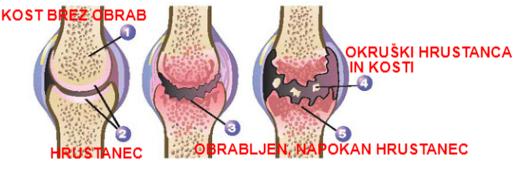 artroza - obraba sklepov