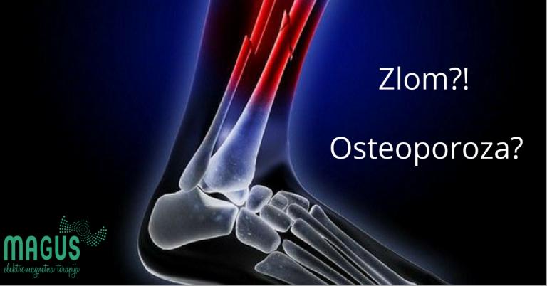 osteoporozna kost se hitreje zlomi