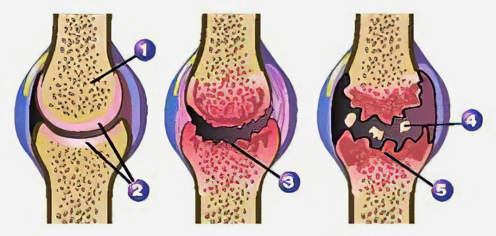 Artroza- obraba sklepa