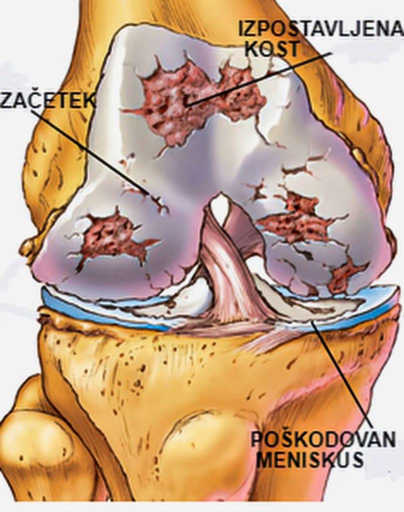 oteklo koleno-osteoartroza
