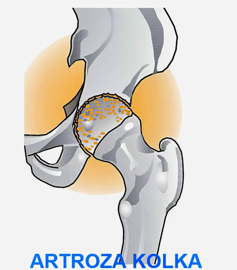 Bolečine v kolku in dimljah, artroza kolka