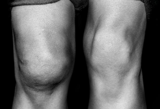 oteklo koleno, artritis