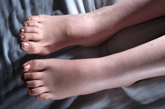 bolecine v gleznju-artroza