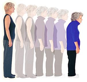 osteoporoza znaki